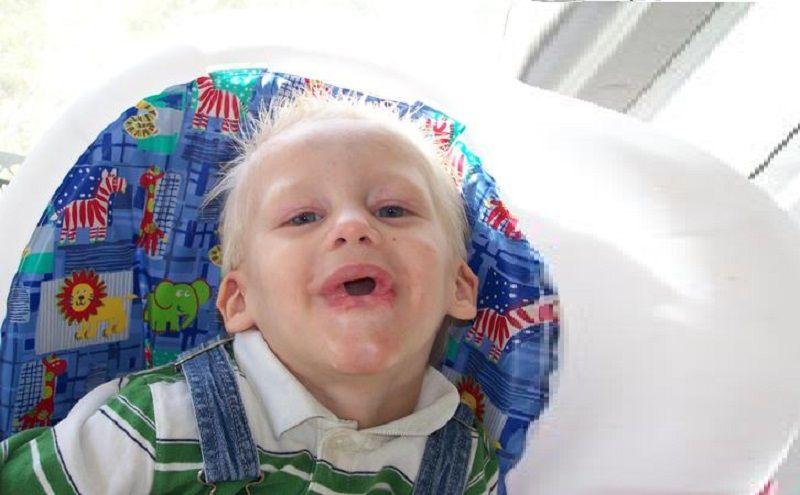 Tristan Durtschi - El niño que se comió su lengua